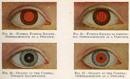Scientists Create Proteins To Enable Human Eyes To See A Wider Color Spectrum 100