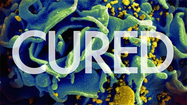 HIV has been cured in a child for the first time 1