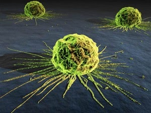 Why Medicine Won't Allow Cancer to Be Cured 18