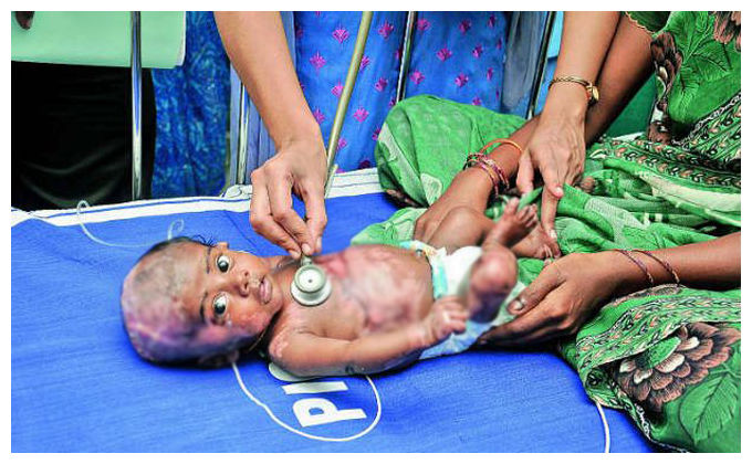 Tamil Nadu's baby Rahul sets on fire by himself 22