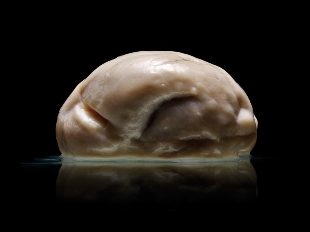 Is this the most extraordinary human brain ever seen? 1