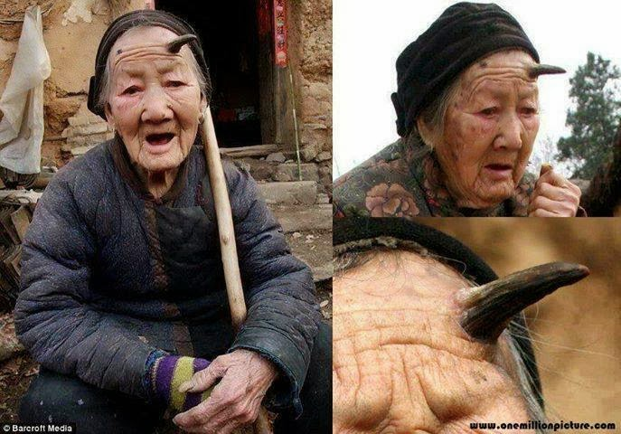 A 101-year-old woman grows horns!  86