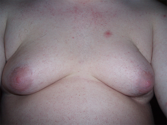 """One in two boys develops breasts, physician claims """"entirely normal phenomenon"""" 16"""