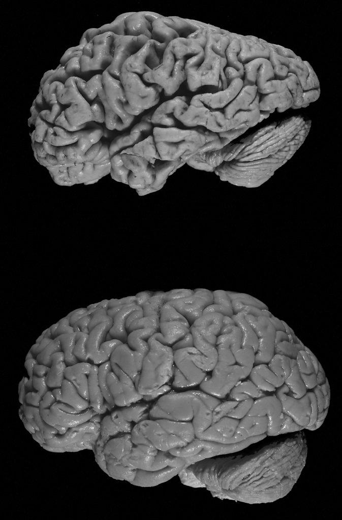 Alzheimer's Diseased Brain