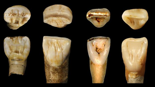 Strange fossils from China don't seem to fit any known hominin species. Could they be something new? 89