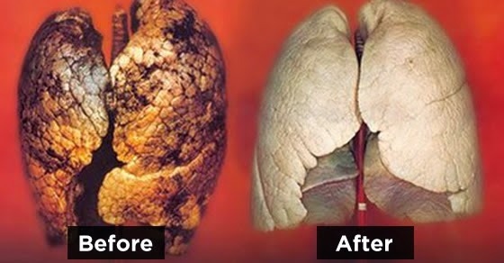 How To Purify Your Lungs In 72 Hours 90