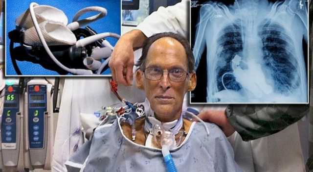 Meet The Worlds First Heartless Human (Literally) Able To Live Without A Pulse 86