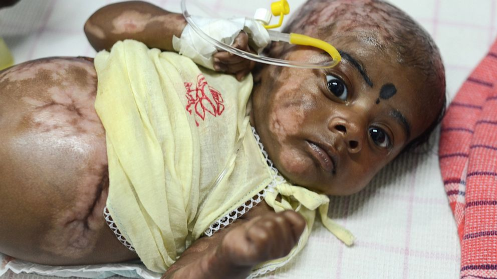 Spontaneous combustion redux: Indian mother claims her baby boy's feet 'caught fire' two years after her other son was found burning 100