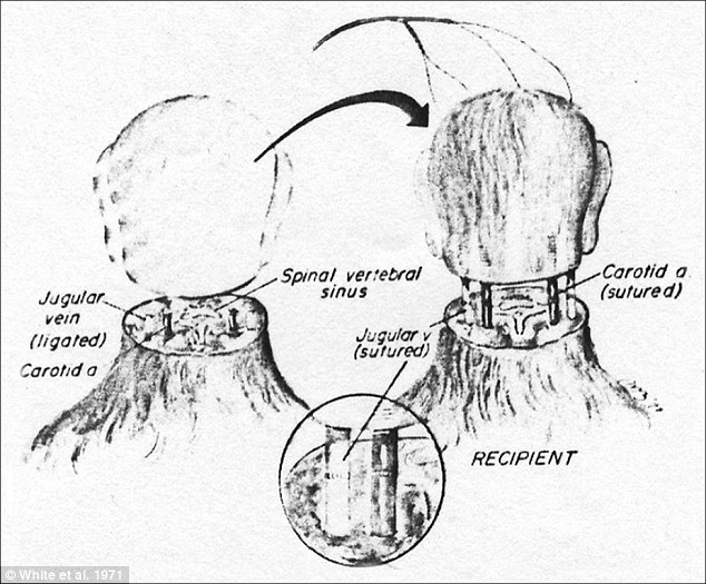 History: In 1970 Dr Robert White transplanted the head of one monkey onto the body of another, as shown in this diagram. If Mr Spiridonov's head were to be successfully transplanted his jugular vein and spinal cords would have to be similarly fused with those of his new donor body