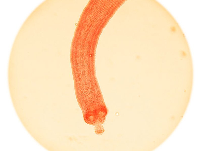 9. Tapeworms: 700 deaths a year