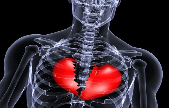 Time Does Not Mend a Broken Heart; Scientists Find Condition Causes Long-Term Damage 1