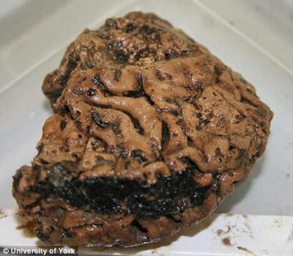 Mind-boggling discovery: Perfectly preserved brain of Iron Age man unearthed in York 97
