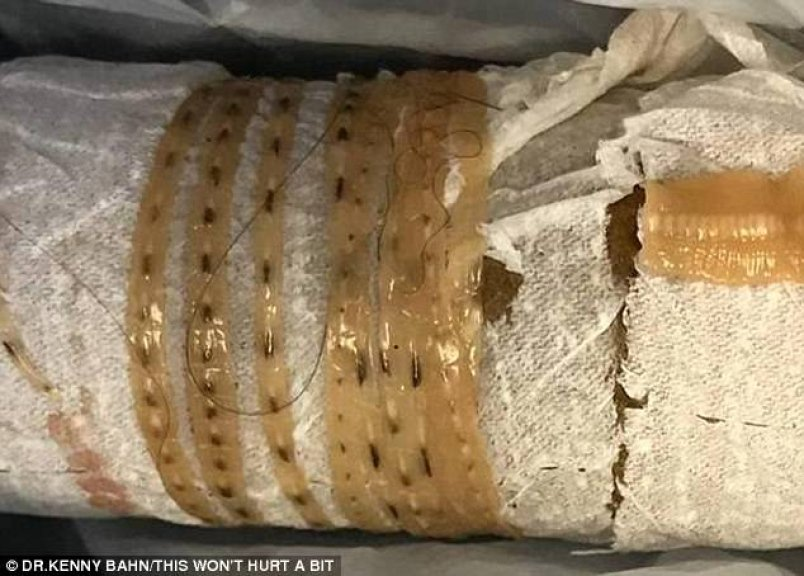 A Man Has A 5-Foot-Long Tapeworm Come Out of Him After Eating Sushi – Do We All Have Parasites? 1
