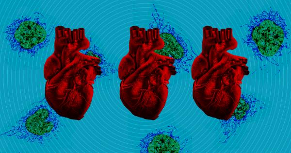 Doctors Repair Infants' Damaged Hearts With Experimental Procedure 1