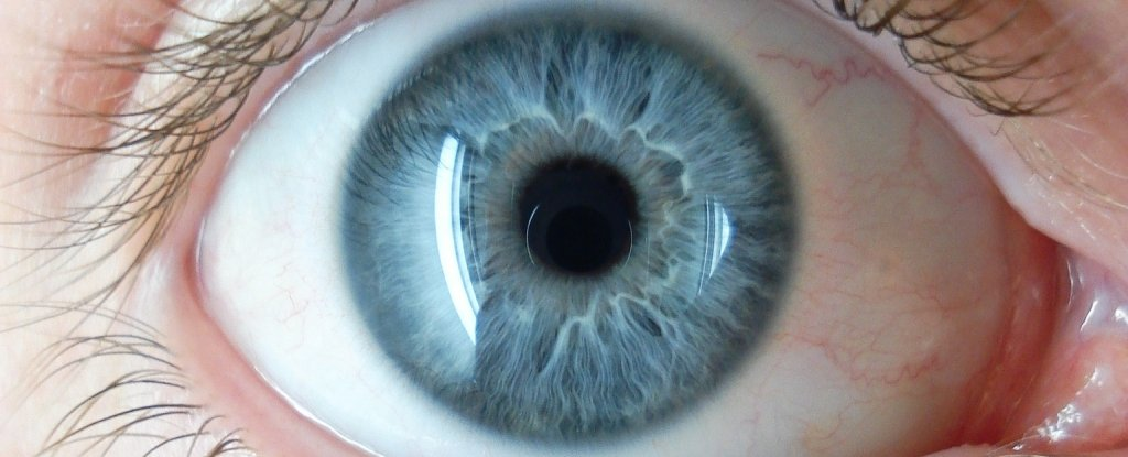 Syphilis Is Attacking People's Eyeballs, And This Issue Is on The Rise Around The World 1