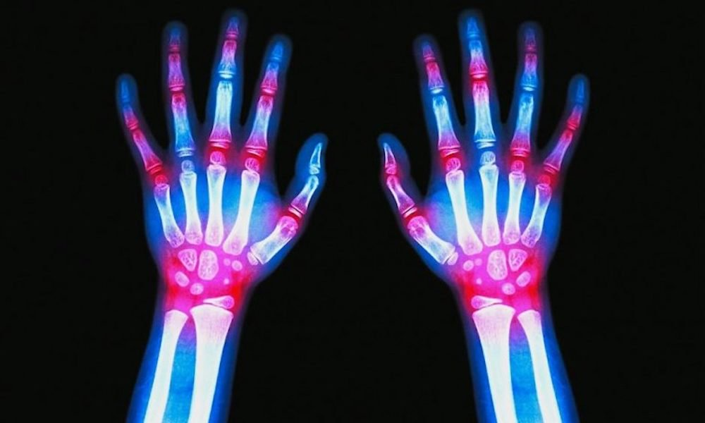 """Is Arthritis in Childhood Becoming the """"New Normal?"""" 86"""