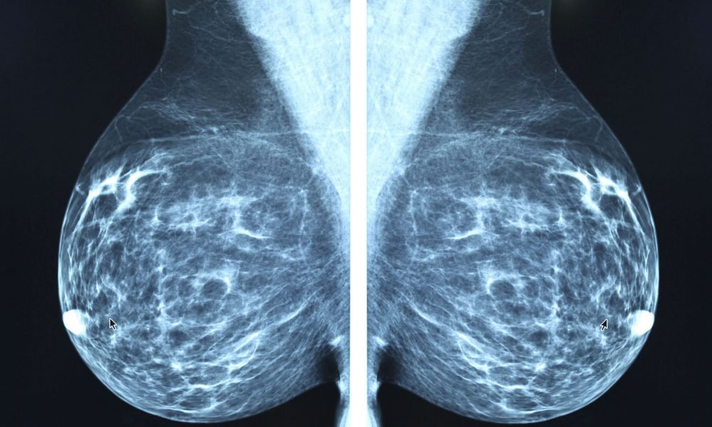 How X-Ray Mammography Is Accelerating The Epidemic of Cancer 1