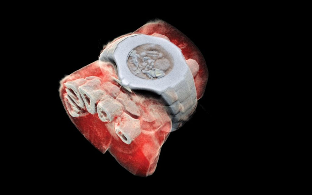 1st Color X-Rays of Human Body Are Bloody Amazing 96