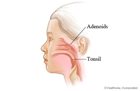Removing Children's Tonsils and Adenoids Increases Risk for 28 Diseases, Study Finds 6