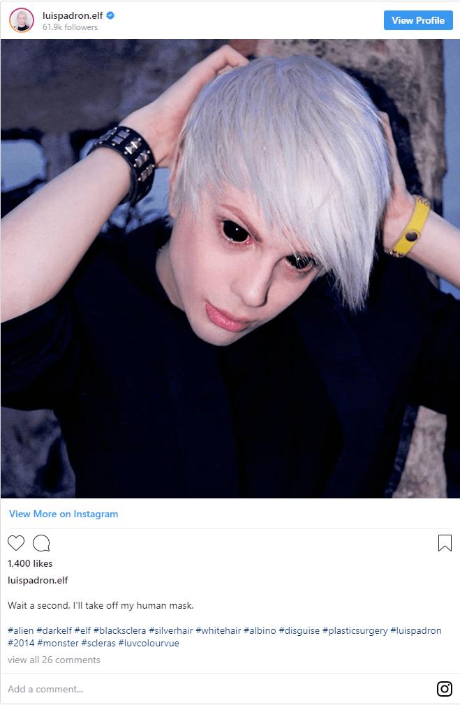 Man Transforms Himself into an 'Elf' 4