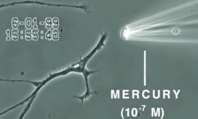Video Shows What Mercury Does to a Brain Neuron in Just 20 Minutes 89
