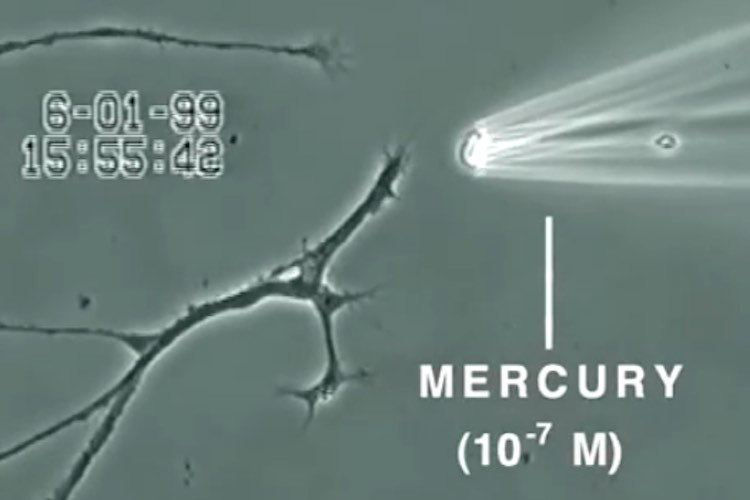 Video Shows What Mercury Does to a Brain Neuron in Just 20 Minutes 10