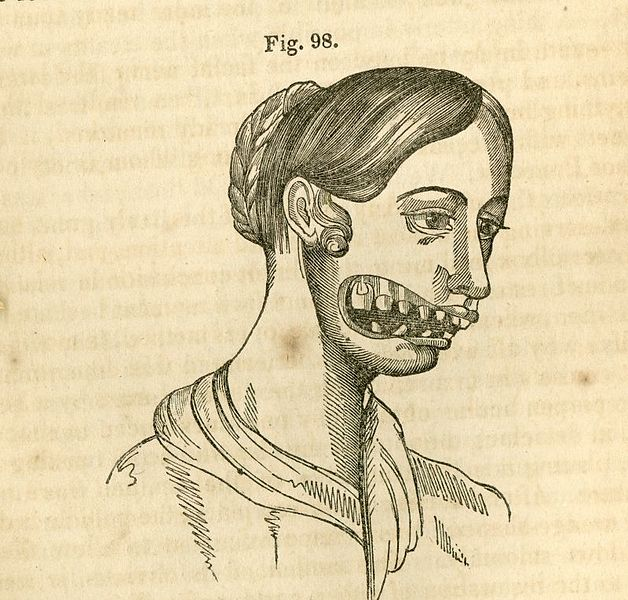 Match Factory Horrors: Phossy Jaw 91
