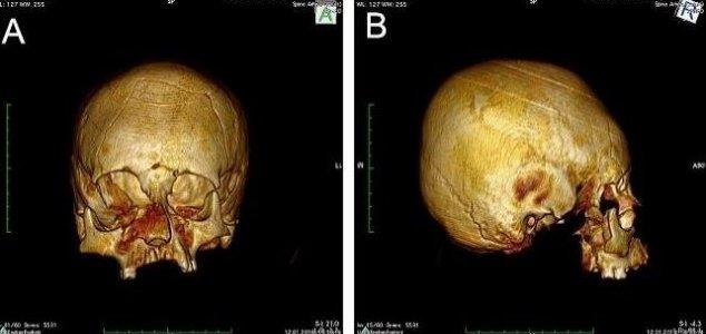 Misshapen 'alien-like' skulls found in Croatia 86