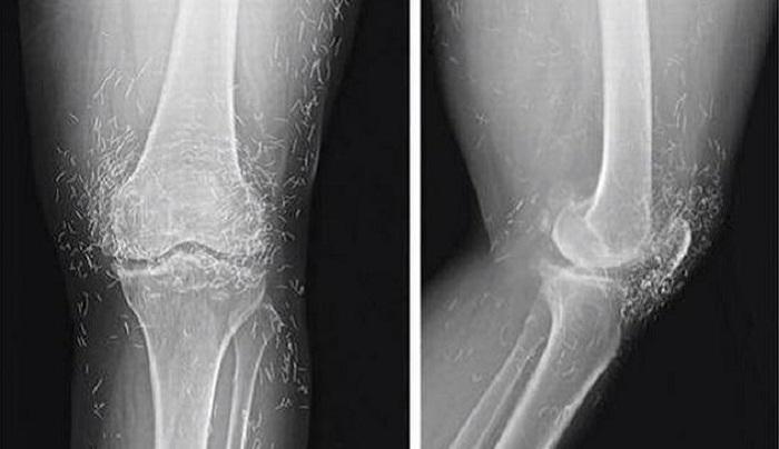 The insane treatment in alternative medicine: gold needles under the skin 92