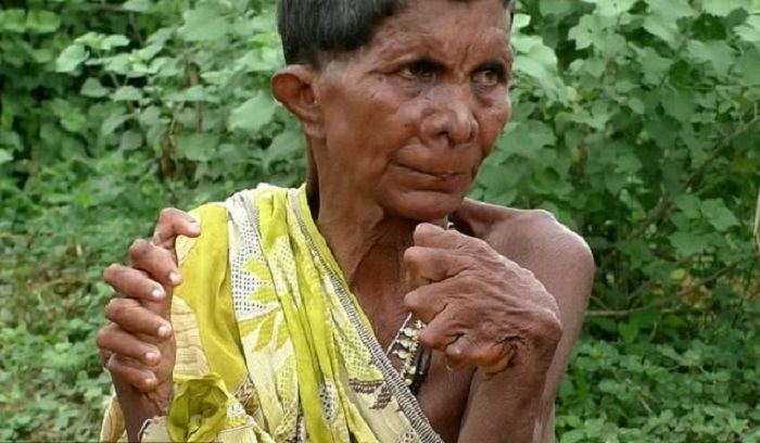 A woman with polydactylism is called a witch because of her mutation 15