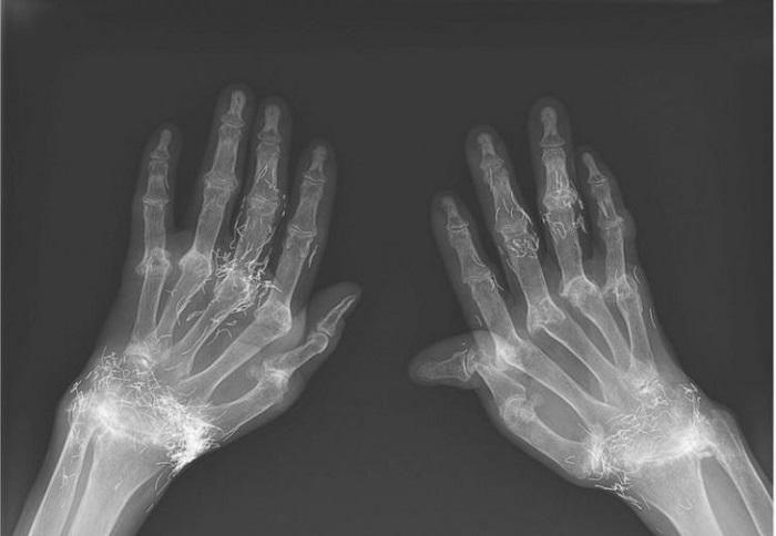 The insane treatment in alternative medicine: gold needles under the skin 94