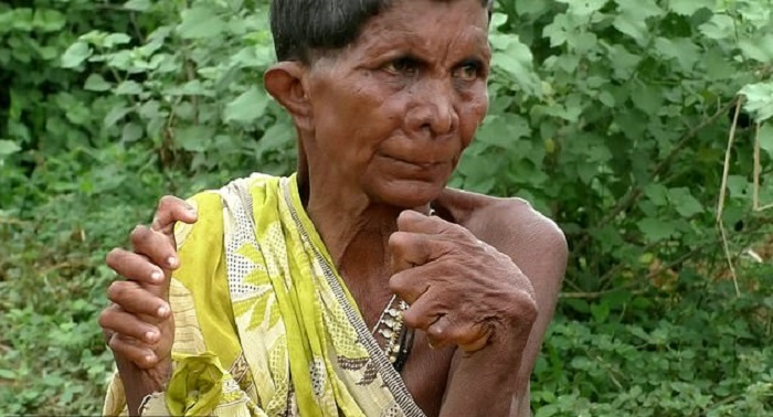A woman with polydactylism is called a witch because of her mutation 17
