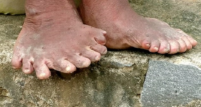 A woman with polydactylism is called a witch because of her mutation 103