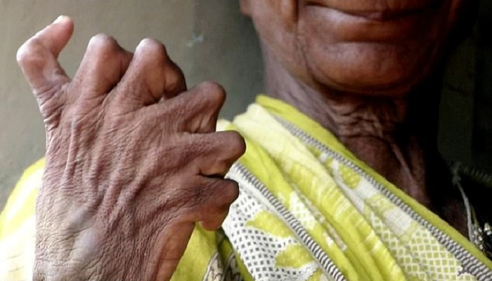 A woman with polydactylism is called a witch because of her mutation 20