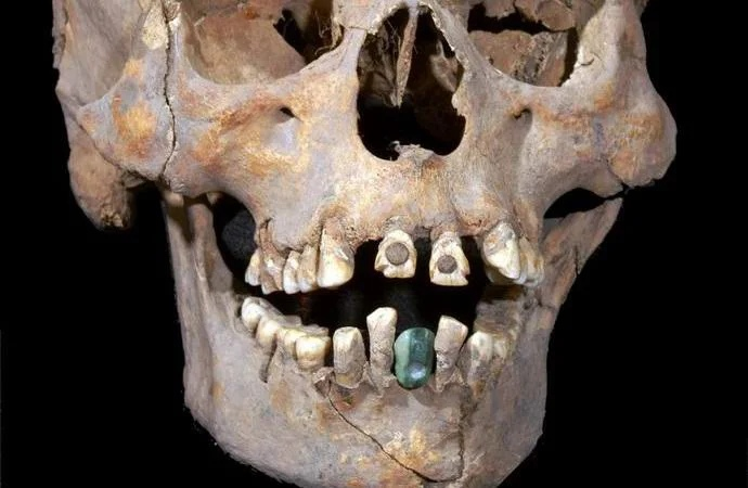 Ancient skull with dentures