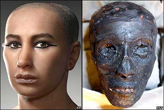 Was Pharaoh Tutankhamun killed, or died from natural causes? 88