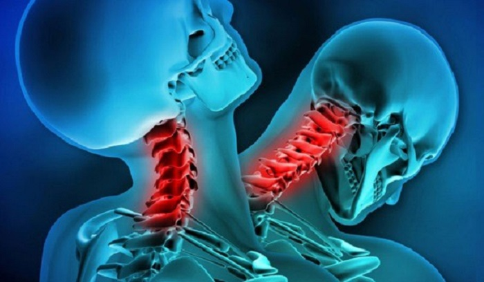 A 20-year-old Chinese resident has been reeling on two ankylosing spondylitis 102
