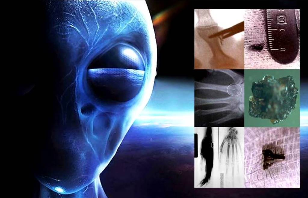 "Documentary maker states: ""Alien Implants"" deserve a thorough study! 86"