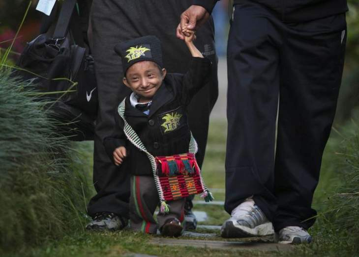 The smallest man in the world died at the age of 27 from pneumonia 18