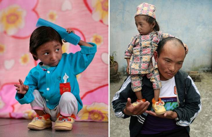 The smallest man in the world died at the age of 27 from pneumonia 17