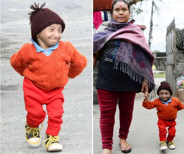 The smallest man in the world died at the age of 27 from pneumonia 15