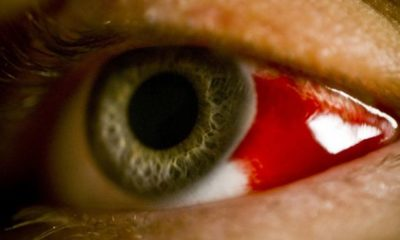 Epidemic X: in Ethiopia, people die from bleeding eye fever 87