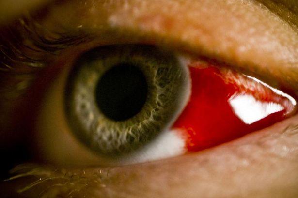 Epidemic X: in Ethiopia, people die from bleeding eye fever 28
