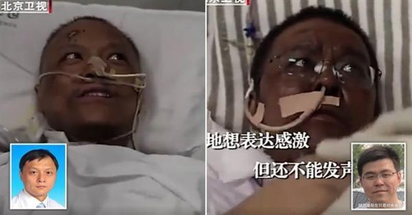 Faces of Two Chinese Doctors Turn Black from Coronavirus after surviving the deadly illness 87