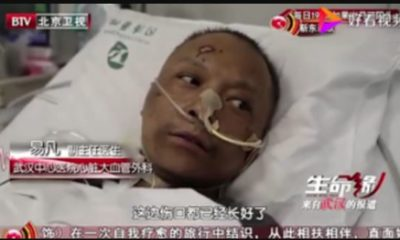 Faces of Two Chinese Doctors Turn Black from Coronavirus after surviving the deadly illness 90