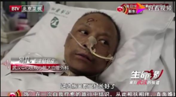 Faces of Two Chinese Doctors Turn Black from Coronavirus after surviving the deadly illness 11