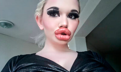 The owner of the largest lips increased them even more 87