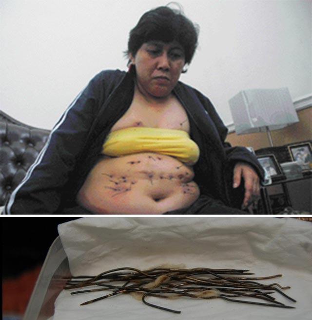 "The strange phenomenon of the ""wire woman"" 2"