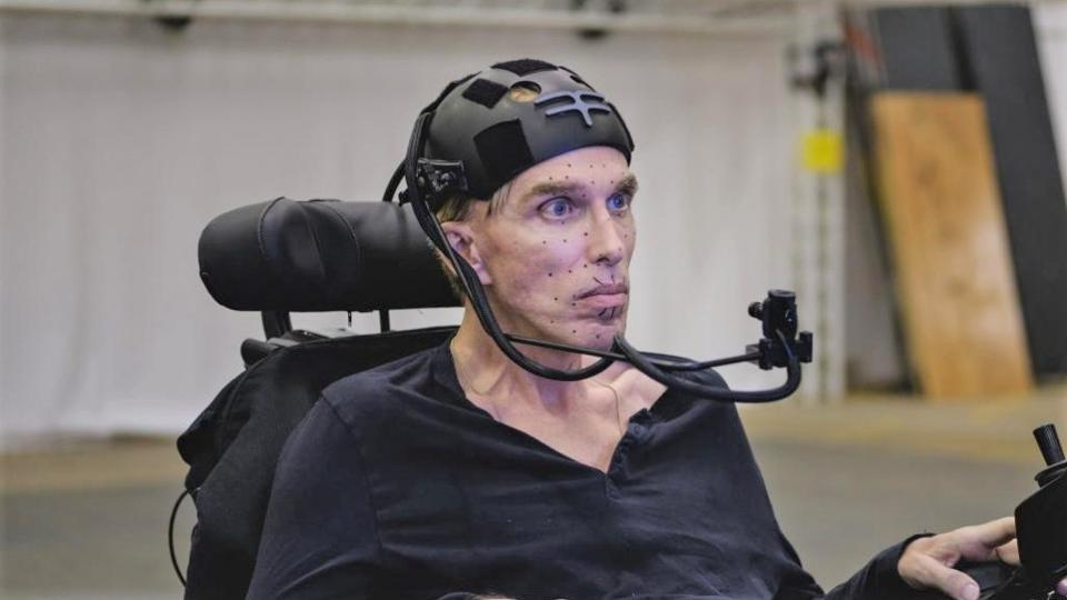 """Scientist Peter Scott-Morgan is set to become """"the world's first complete cyborg"""" 1"""
