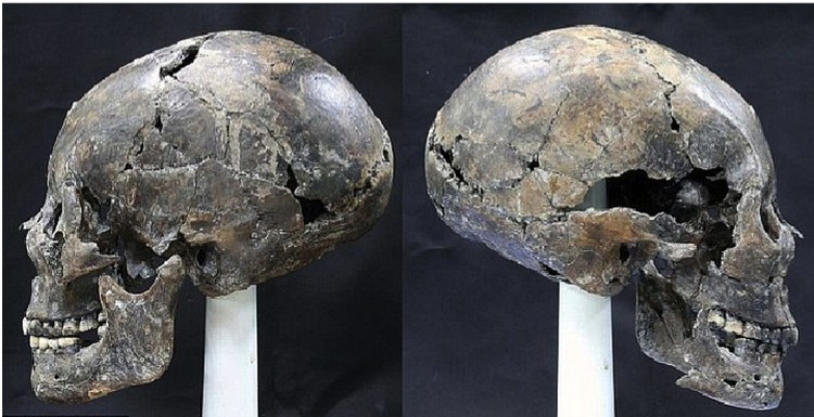 """Inhuman"" skull from a Korean grave."
